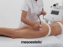 Стегнати крака с bodyshock и Genesis от mesoestetic